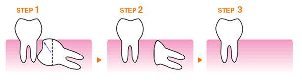 埋伏歯抜歯の流れ