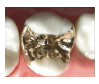 金合金および白金加金ゴールドインレー